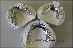 chrome denture frames