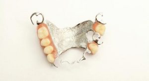 upper cobalt chrome denture