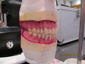 denture setup