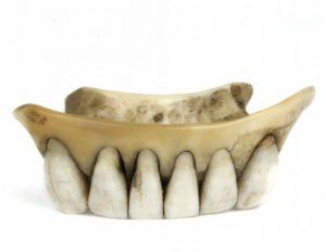 hippo denture
