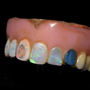 mother of pearl denture